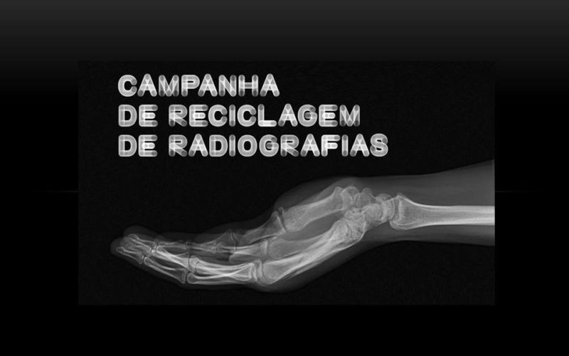 Resíduos | Campanha da AMI de recolha de radiografias decorre entre 25 de janeiro e 17 de fevereiro