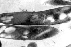 Saúde | Portugal regista 1.700 casos de Tuberculose, mas ainda morrem 1,5 milhões de pessoas em todo o mundo