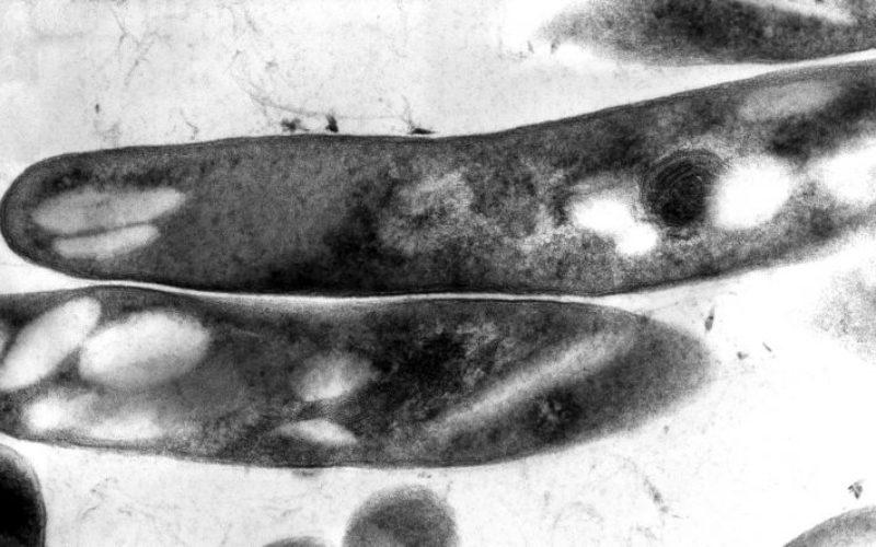 Saúde   Portugal regista 1.700 casos de Tuberculose, mas ainda morrem 1,5 milhões de pessoas em todo o mundo