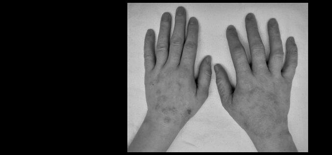 Saúde | Duzentos mil portugueses sofrem formas graves de Dermatite Atópica