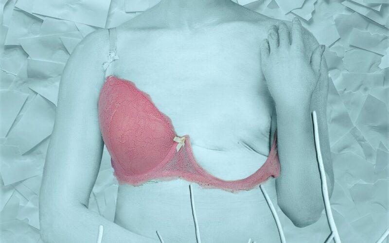 Saúde | Conhecer alterações genéticas facilita prevenção do cancro da mama